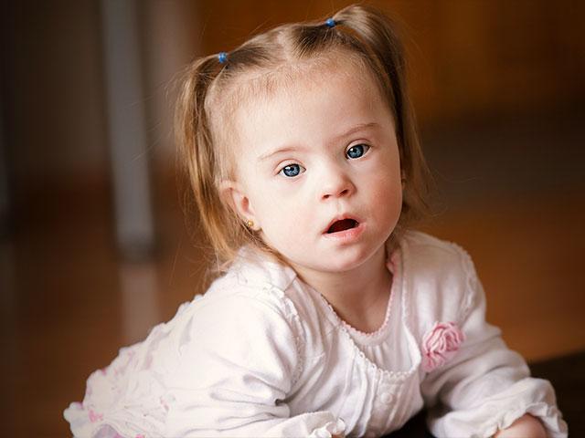down syndrome toddler kid