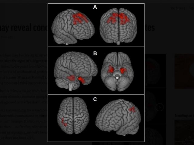 This image provided by The New England Journal of Medicine in April 2019 shows an illustration based on brain scans from former NFL players. (The New England Journal of Medicine via AP)