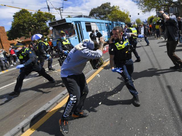 James Ross/AAP Image via AP
