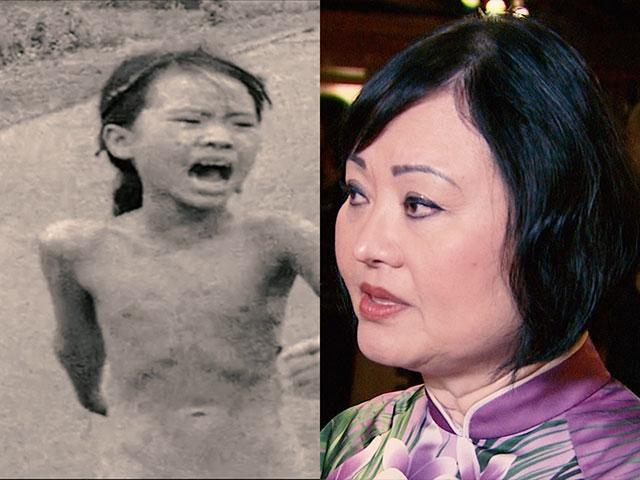 Kim Phuc, Girl in the Photo, Vietnam War napalm bomb