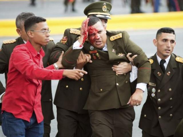 A uniformed official bleeds from the head following an incident during a speech by Venezuela's President Nicolas Maduro Saturday in Caracas, Venezuela. Image released by China's Xinhua News Agency. Courtesy AP.