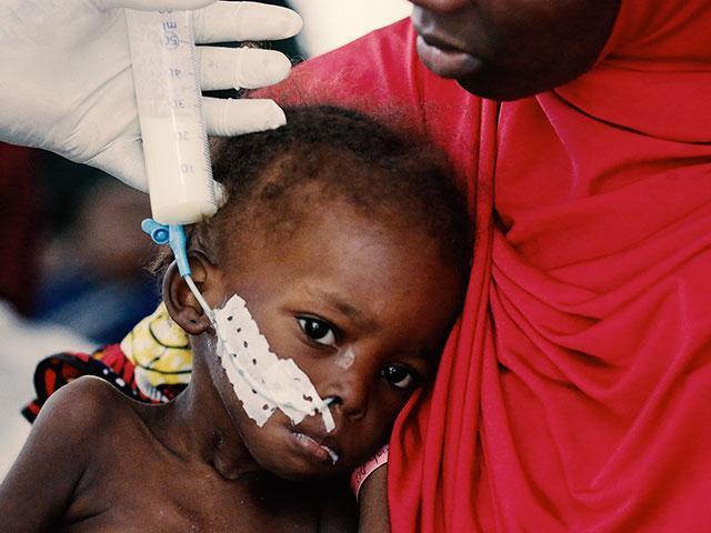 nigeriamalnourishedstarvingchildap