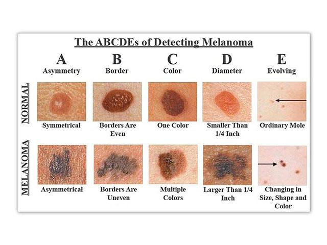 Melanoma Monday These 5 Little Facts Could Save Your Life