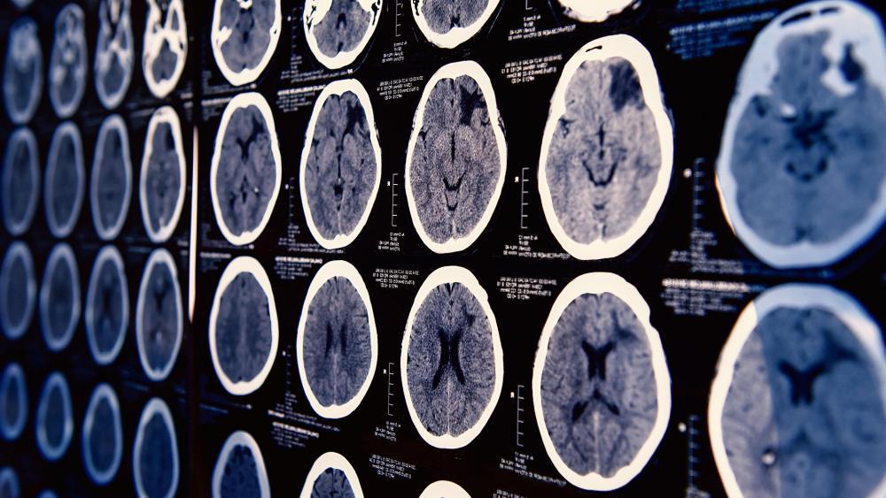 brainscanas